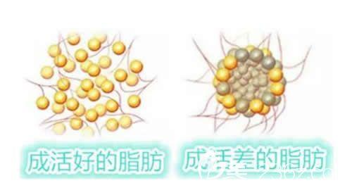 脂肪填充后热敷不利于脂肪细胞成活