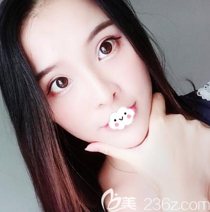 这就是我刚找广州曙光张小芸做的玻尿酸全脸填充效果图啦好不好看大家说了算