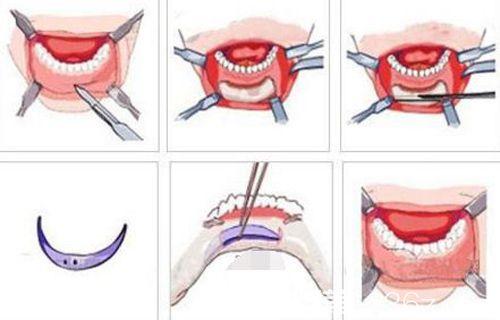 硅胶垫下巴手术步骤原理图