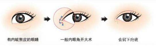 开内眼角手术