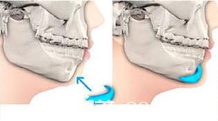 硅胶假体垫下巴手术示意图