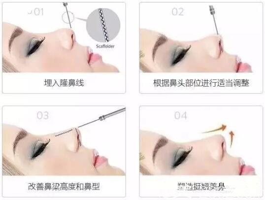 线雕隆鼻过程步骤