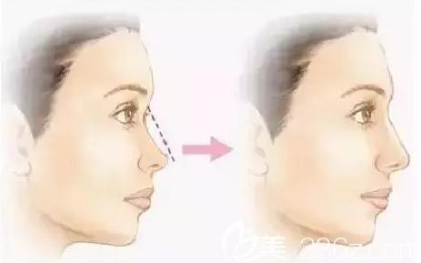线雕隆鼻术后效果对比