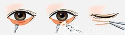内切祛眼袋手术过程图