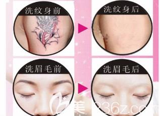 激光洗眉和洗纹身对比照