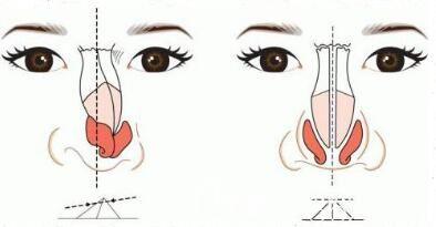 硅胶和膨体那个隆鼻材料能够更好一点