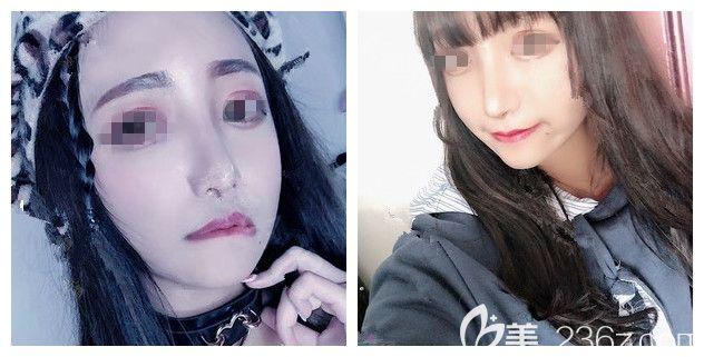 南京韩辰整形医院晏义兵术后照片1