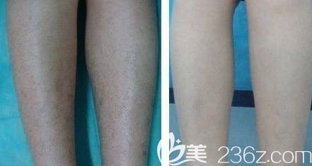 大腿脱毛术前术后对比照片