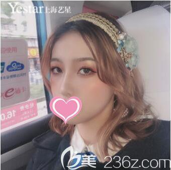 双眼皮和隆鼻能够一起做吗?我在上海艺星做的眼综合+鼻综合一起做后效果更好