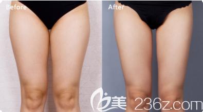 大腿吸脂效果图