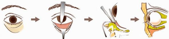 激光祛眼袋过程图