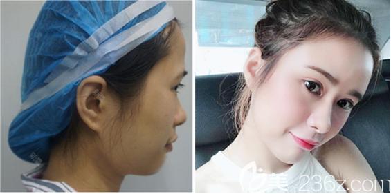 深圳美芮(原雅唯)整形医院王权做的全脸脂肪填充案例