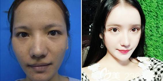 深圳仁安雅苗春来做的全脸脂肪填充真人案例