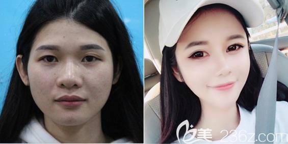 深圳丽港丽格谢俊全脸脂肪填充案例