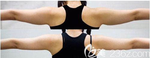 做手臂抽脂术前术后对比效果