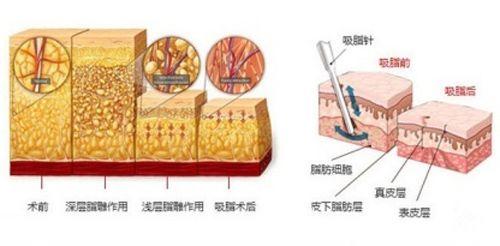 手臂吸脂减肥的手术步骤原理图