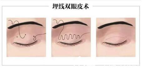 埋线双眼皮手术过程示意图