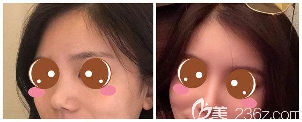 假体隆鼻+自体耳软骨垫鼻尖+鼻翼缩小案例
