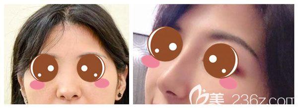 耳软骨垫鼻尖+膨体隆鼻案例效果对比图
