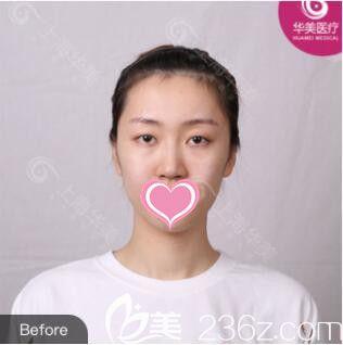 上海丽质医疗美容门诊部高冠云术前照片1