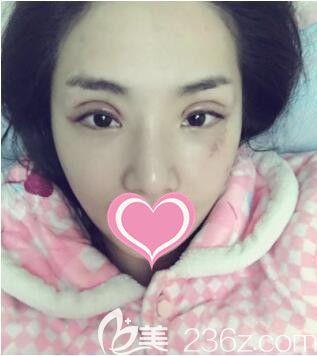上海丽质高冠芸眼修复真人案例术术后第2天
