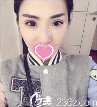 上海丽质高冠芸眼修复真人案例术术后14天