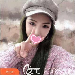 上海丽质医疗美容门诊部高冠云术后照片1