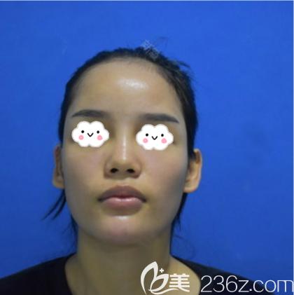 深圳仁安雅医疗美容整形门诊部苗春来术前照片1