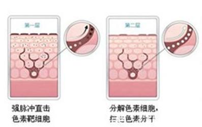 光子嫩肤治疗原理