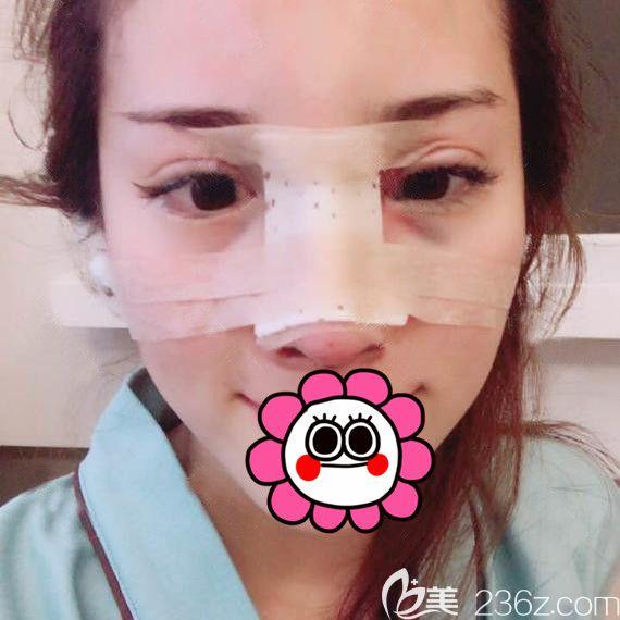 到宁波薇琳做完耳软骨鼻综合术后