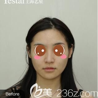 上海艺星医疗美容医院李建兵术前照片1