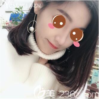鼓足勇气的我在上海艺星做了鼻综合后给大家看看术后恢复效果图