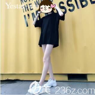 上海艺星傅金萍大腿吸脂真人案例术后30天
