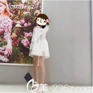 腿粗不用怕我在上海艺星找傅金萍做大腿抽脂之后就被叫腿精了