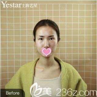 上海艺星医疗美容医院许炎龙术前照片1