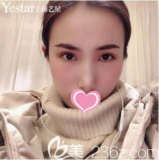 上海艺星许炎龙经典桃花媚眼术真人案例术后26天