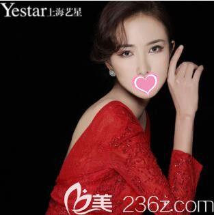 上海艺星医疗美容医院许炎龙术后照片1