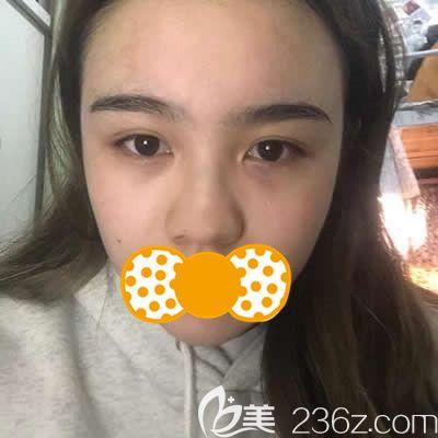 泉州欧菲医疗美容门诊部刘骏术前照片1
