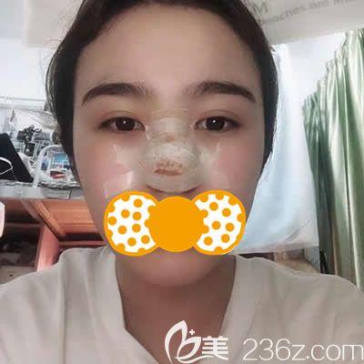 泉州欧菲刘俊医生为我做鼻头鼻翼缩小术后三天照片