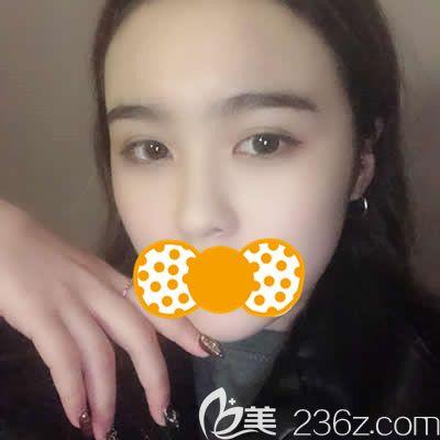 泉州欧菲刘俊医生为我做鼻头鼻翼缩小术后25天效果