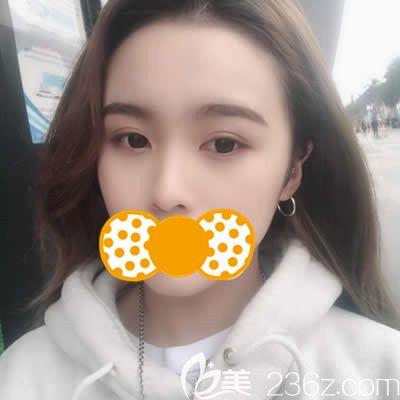 泉州欧菲医疗美容门诊部刘骏术后照片1
