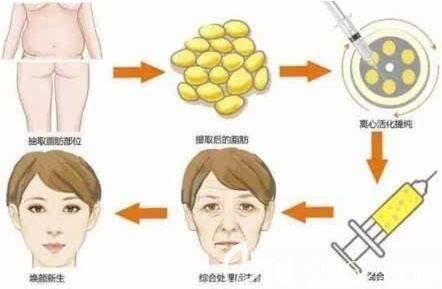 体脂肪移植填充面部过程示意图