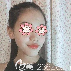 湘潭雅美医疗美容医院邓利辉术前照片1