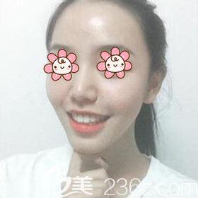 把我在湘潭雅美做自体脂肪丰额头太阳穴术后45天恢复效果图跟大家分享一下!