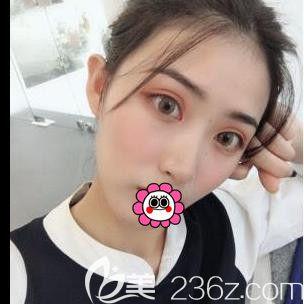 宁波鄞州艺星时代美容医院彭鑫术后照片1