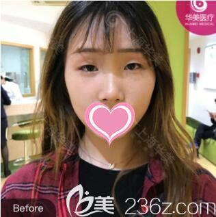 上海华美医疗美容医院佀同帅术前照片1