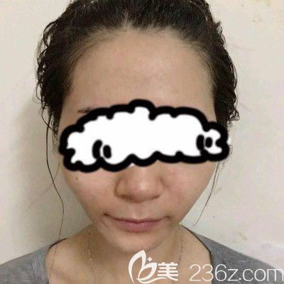 赣州叶子医疗美容门诊部钟林辉术前照片1