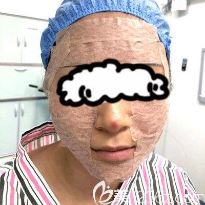 赣州叶子医疗美容钟林辉给我做自体脂肪填充全脸术后即刻效果图