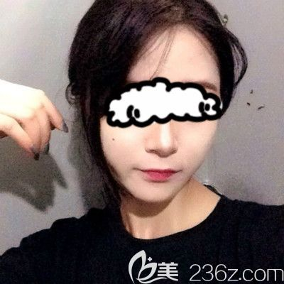 赣州叶子医疗美容钟林辉给我做自体脂肪填充全脸术后第5天照片
