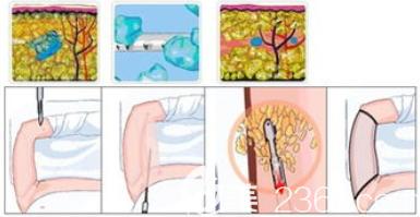 手臂吸脂手术过程图